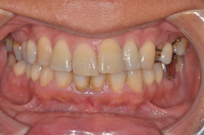 歯石除去 before1