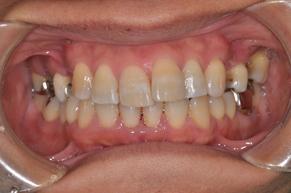 歯石除去 after1