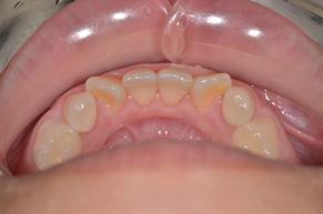 歯石除去 after2