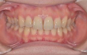 前歯のガタガタと口元の突出感 after1