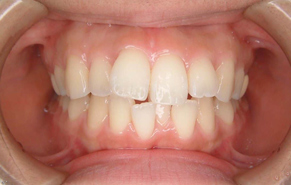 前歯のガタガタと口元の突出感 before1
