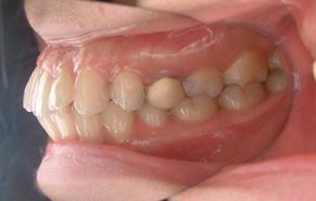 前歯のガタガタと口元の突出感 before2