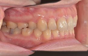 前歯のガタガタと口元の突出感 after3