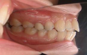 前歯のガタガタと口元の突出感 before3